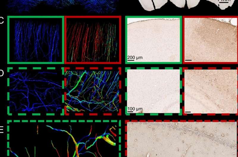 Computermodellen voor hersenletsel brengen hersenbloedvaten in kaart in de hoogste resolutie tot nu toe