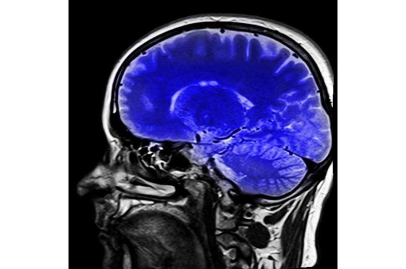 imaginea creierului
