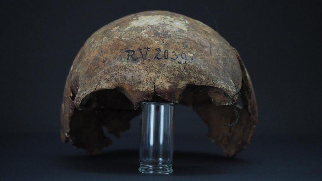 cranio parziale dell'uomo morto circa 5,000 anni fa in Lettonia di peste bubbonica