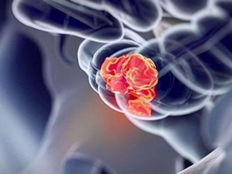 Multitargetový fekálny imunochemický test zvyšuje diagnostickú presnosť