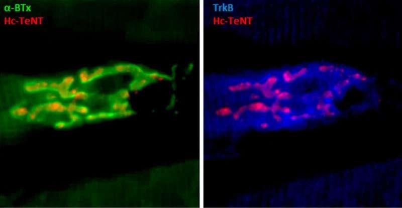Fragment toxinu tetanu může léčit depresi, Parkinsonovu chorobu a ALS