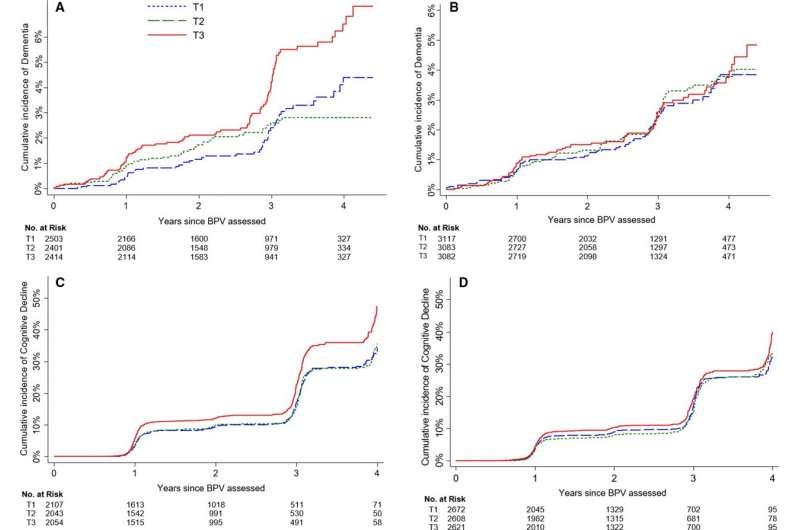 Variabilitatea tensiunii arteriale asociată cu un risc crescut de demență, în special la bărbați
