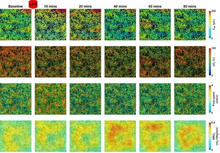 Špičkové zobrazovanie odhaľuje krv, tok kyslíka a energetický metabolizmus v obličkách myší