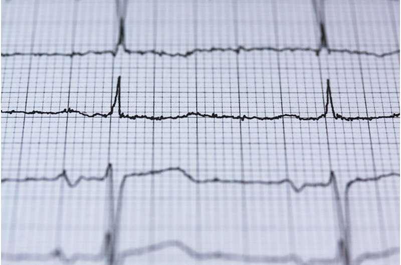 srčani ritam