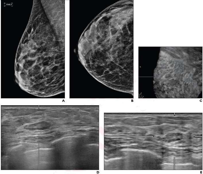 Įprasta BI-RADS pažeidimų patikra atliekant automatizuotą visos krūties ultragarsą