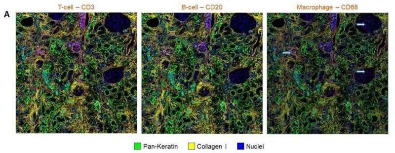 Respon imun yang kuat mendasari cedera ginjal akut terkait dengan COVID-19
