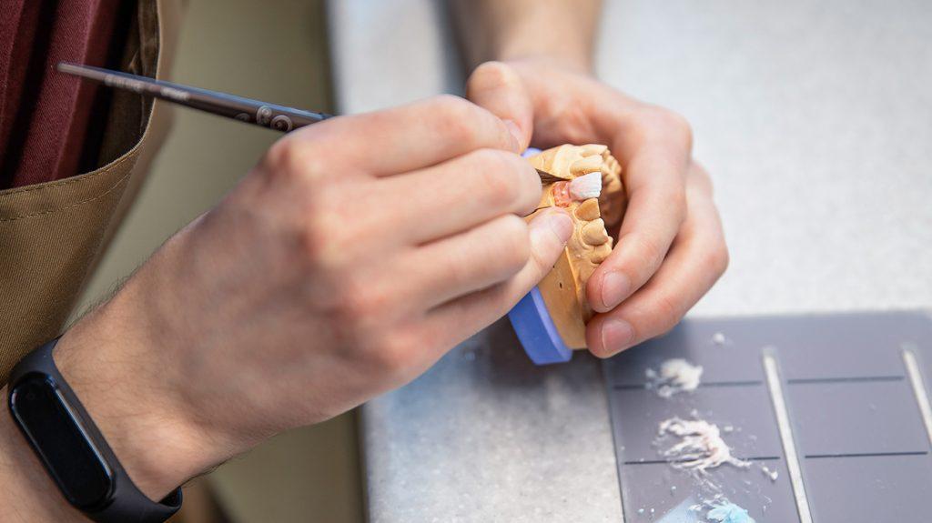 le mani del professionista che puliscono le dentiere