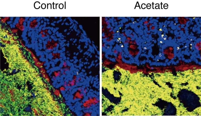 Senyawa sederhana untuk mengendalikan mikroba usus yang kompleks