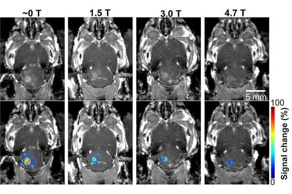 Het magnetische veld van MRI beïnvloedt de gerichte ultrasone technologie