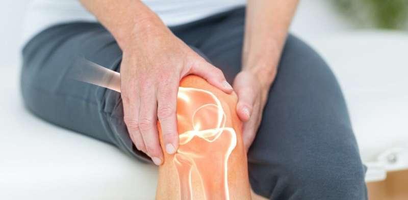 3D tehnologija koja bi mogla revolucionirati u liječenju artroze koljena