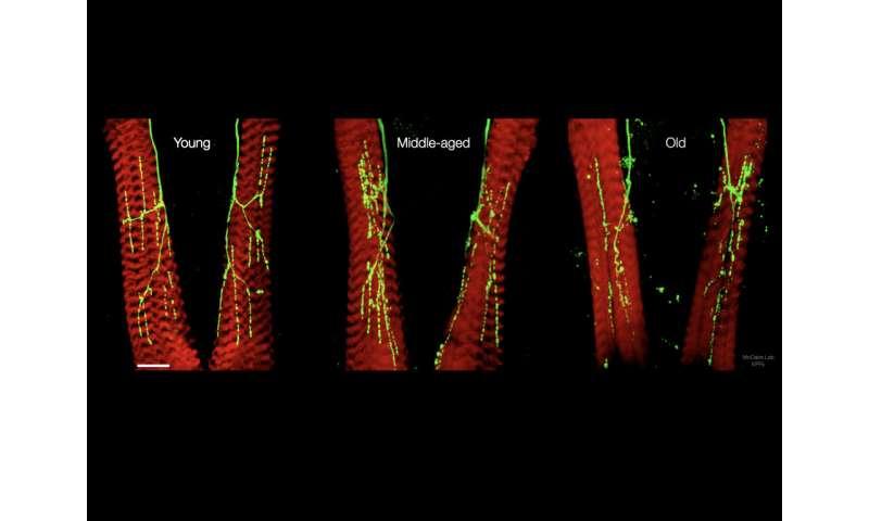 'Kebisingan' otak membuat koneksi saraf tetap muda