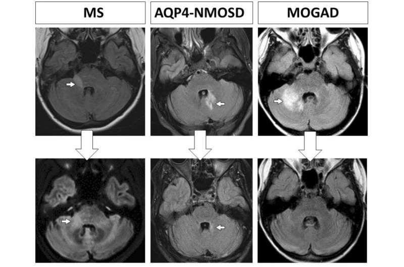 Studiul poate arăta de ce pacienții cu scleroză multiplă dezvoltă dizabilități progresive