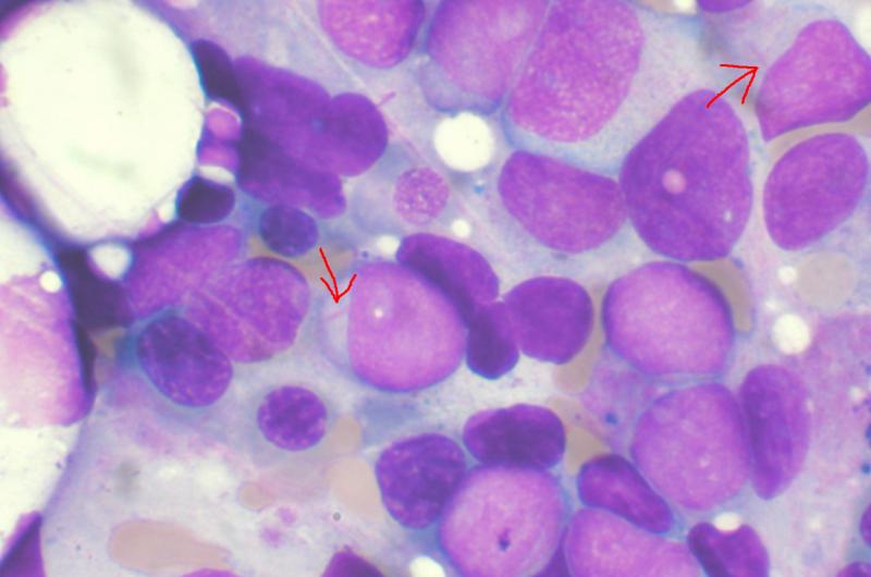 myeloidná leukémia