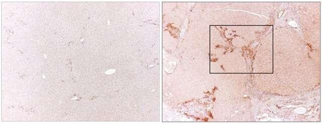 Selektyvūs toksinus turintys antikūnai galėtų padėti gydyti kepenų fibrozę