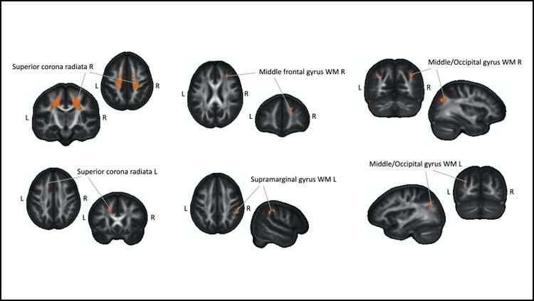 Hoe het leren van braille de hersenstructuur in de loop van de tijd verandert